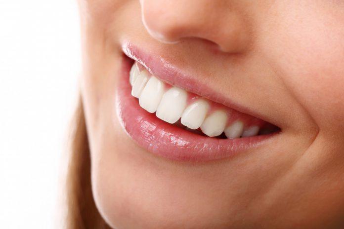 ציפוי שיניים – לאחר 5 הדקות הקרובות תדעו כל מה שאתם צריכים לדעת