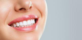 סוגי ציפויים לשיניים ומהו הציפוי הפופולרי ביותר?